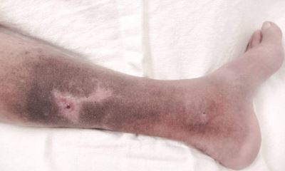 Venous skin ulcer pictures 2
