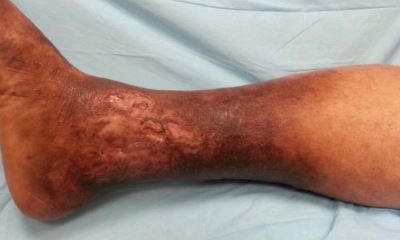 Venous stasis ulcer pictures 6